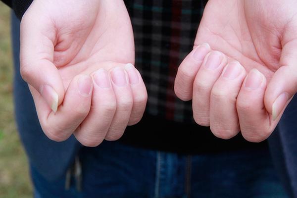"""指甲上有竖纹是怎么回事 是身体出现问题的""""信号""""吗?"""
