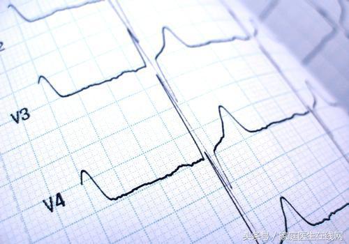 如何看心电图?教你看懂异常心电图,不用找医生